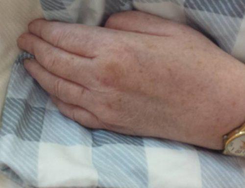 Ganz verkrampfte Hände – Schnelle Besserung durch Pflegerin mit Herz